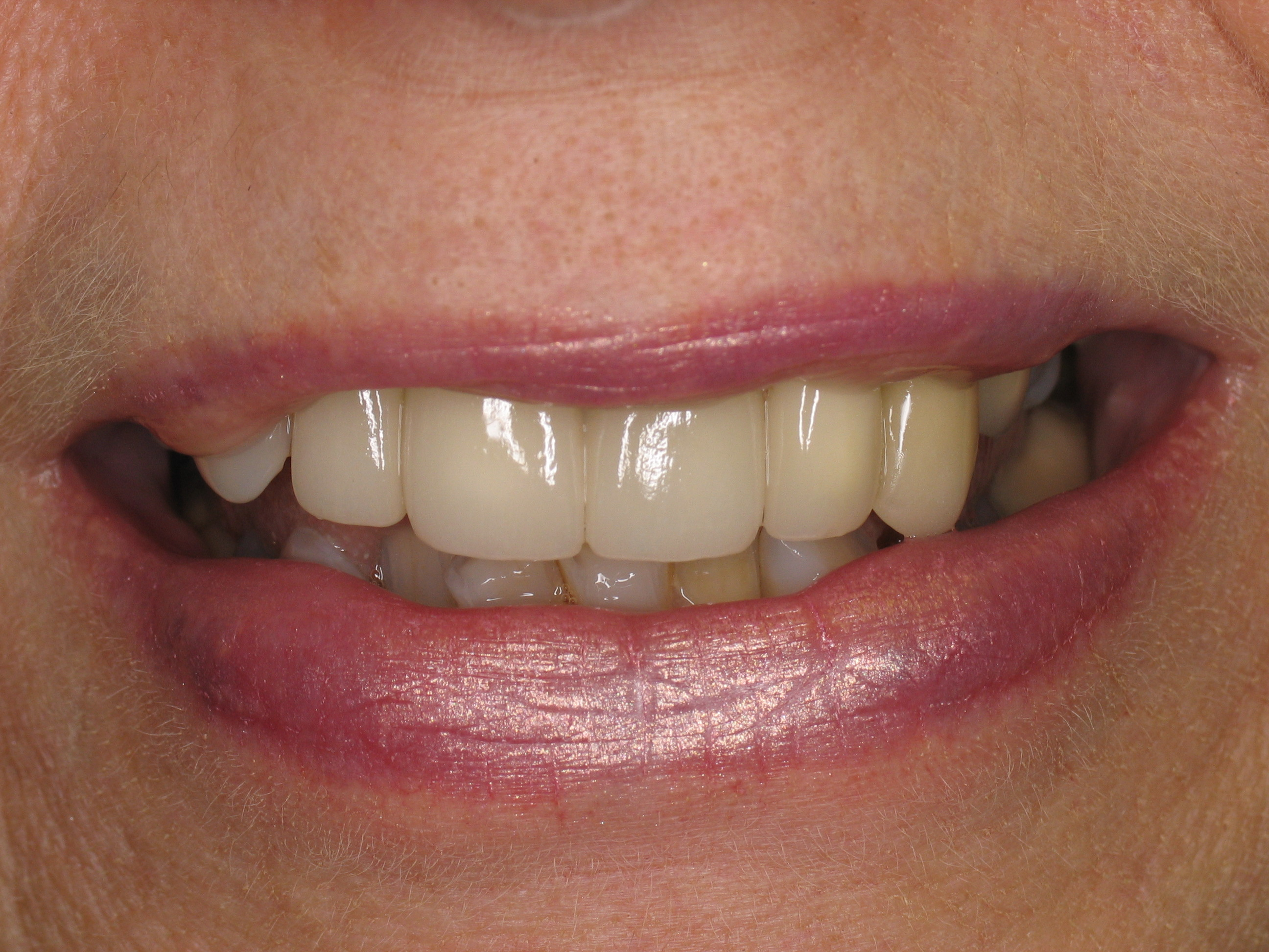 front tooth crown ...