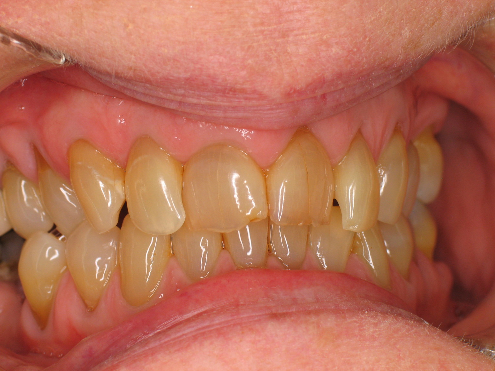 What causes yellow teeth Easy tips to make your teeth white again