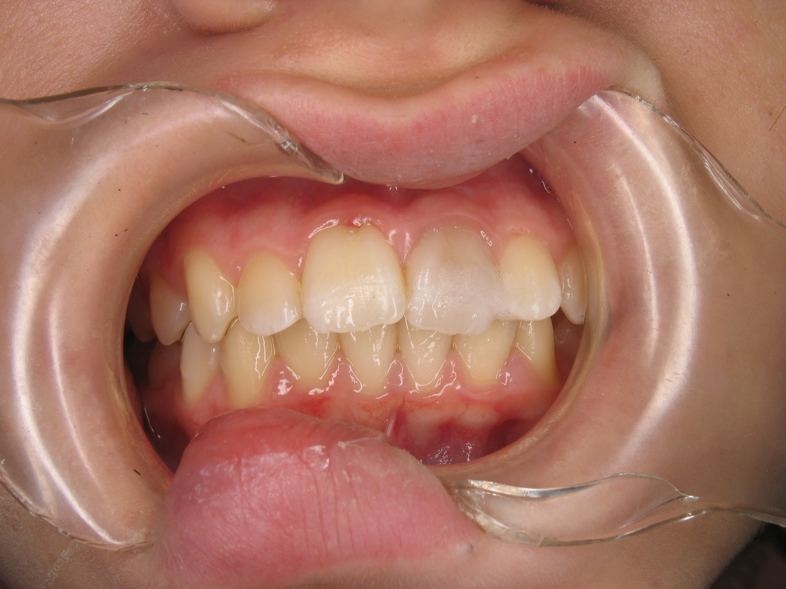 how to fix a small chip in front tooth