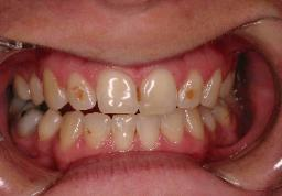 Brown Spots on Baby Teeth http://www.freedmandental.com/Childrensdentistry.html